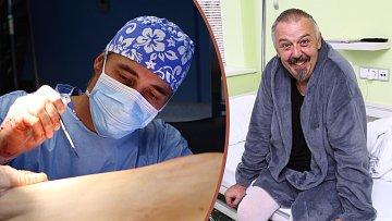 Pavel Vohnout podstoupil plastickou operaci.