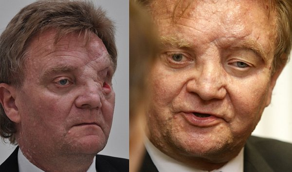 Na snímku Zdeněk Hájek před (vlevo) a po zákroku.