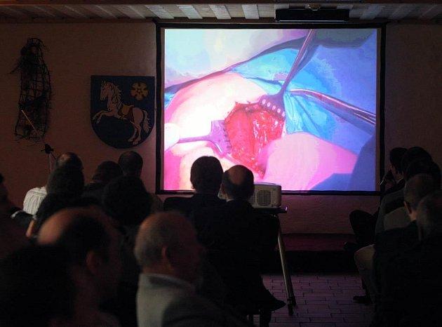 Lékaři sledují v přímém přenosu na Slezskoostravském hradě unikátní operaci ramenního kloubu