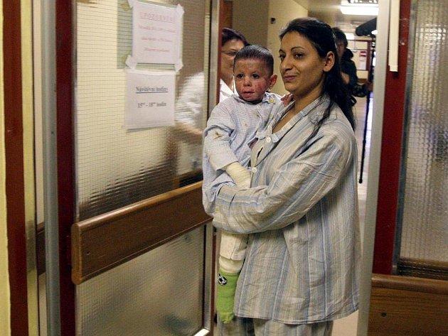 Popálená Natálka z Vítkova ve středu po skoro osmi měsících opustí ostravskou fakultní nemocnici.