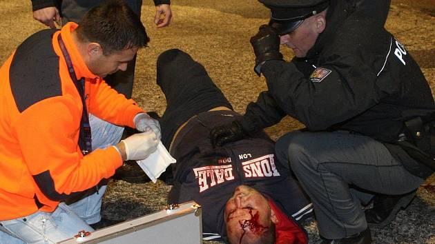 Zraněný fanoušek, který napadl jednoho z policistů.