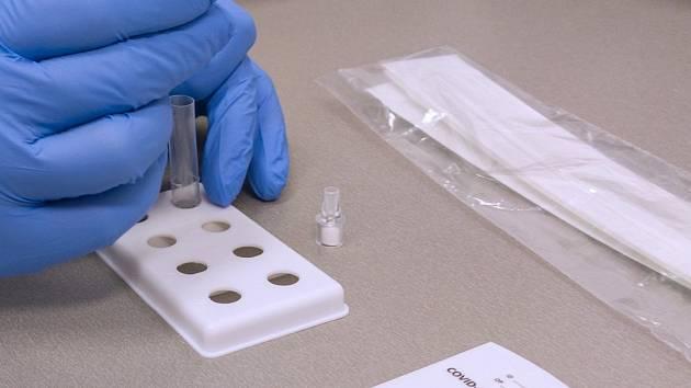 Enormní poptávku velkých i menších podniků z celého Česka po testování svých zaměstnanců na onemocnění covid-19 řeší aktuálně v laboratořích skupiny AGEL.