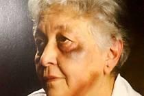 Násilí na seniorech. Ilustrační foto.