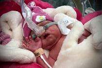 Ve FNO se narodila ve středu 19. února 2020 trojčátka.