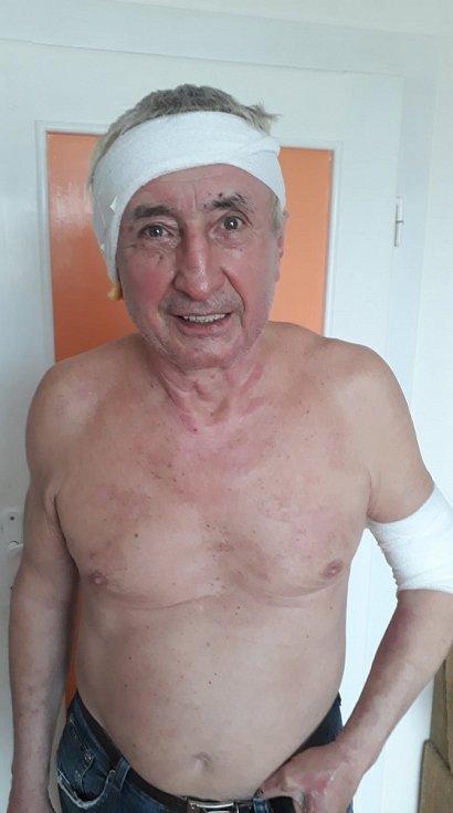 """""""Za 12 dní mě zdravotníci dali tak krásně dohromady. Za to jim moc děkuji,"""" komentoval Ján Čupa tuto fotografii na Facebooku."""