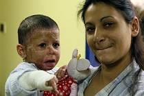 Popálená tříletá Natálka v maminčině náručí před odchodem z nemocnice.