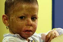 Popálená tříletá Natálka před odchodem z nemocnice.