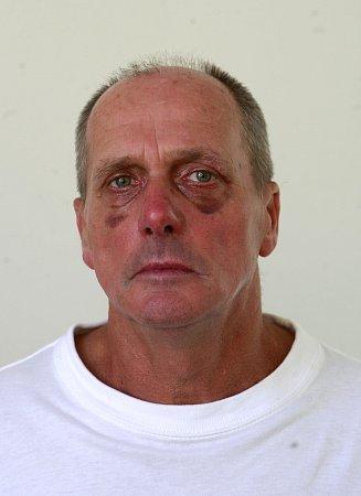 Jiří Juchelka, který se vtramvaji postavil násilníkům, utrpěl řadu zranění. Měl podlitiny, lékaři mu některé rány museli sešít.