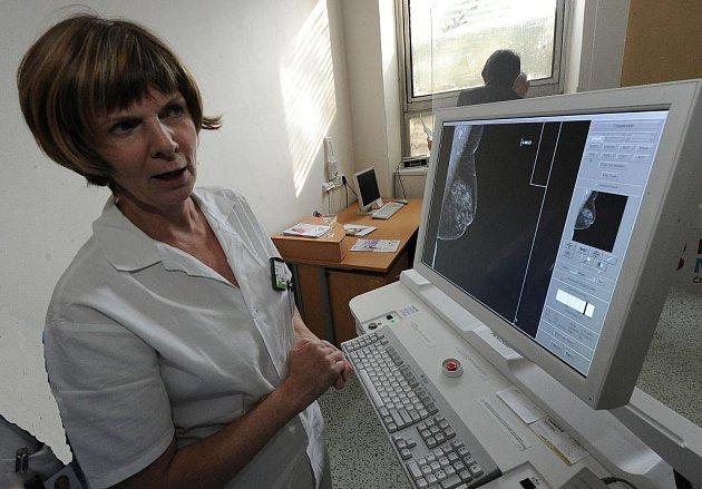 Vítkovická nemocnice slavnostně otevřela nové mamodiagnostické a screeningové centrum. Přestavba si vyžádala investice v celkové výši dvanácti milionů korun.