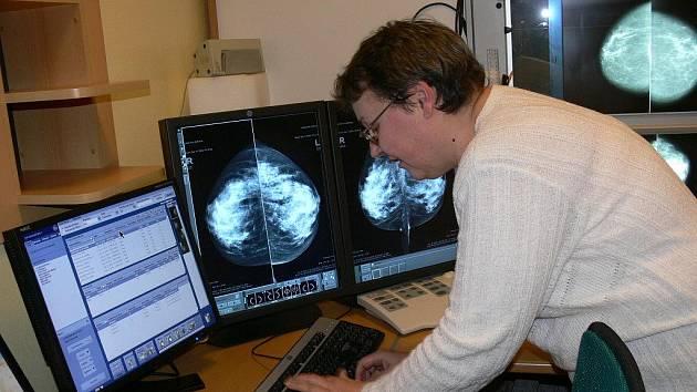 Mamografické pracoviště Šumperské nemocnice