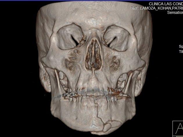 CT snímek lebky a prasklé čelisti Ondry Banka.