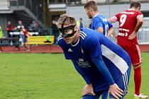 Šumperský fotbalista Petr Linet s chráničem na obličeji během divizního zápasu s Valašským Meziříčím. V Holešově utrpěl zlomený nos i jeho spoluhráč Paris Purzitidis.