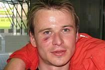Zábřežský záložník Lukáš Okleštěk chvíli po utkání s Blanskem s krvavým šrámem pod okem
