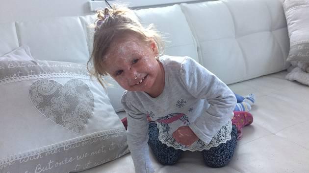 Amálka z Hrabenova trpí ojedinělou vážnou kožní chorobou, podobně nemocných je jen několik lidí na světě.