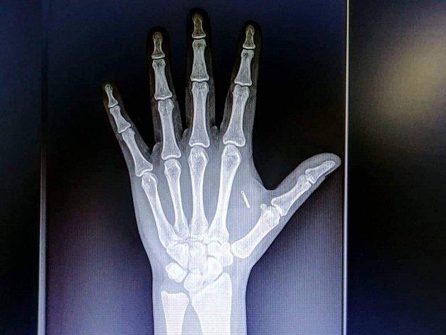 Studentka ze Šumperku si nechala do ruky implantovat čip
