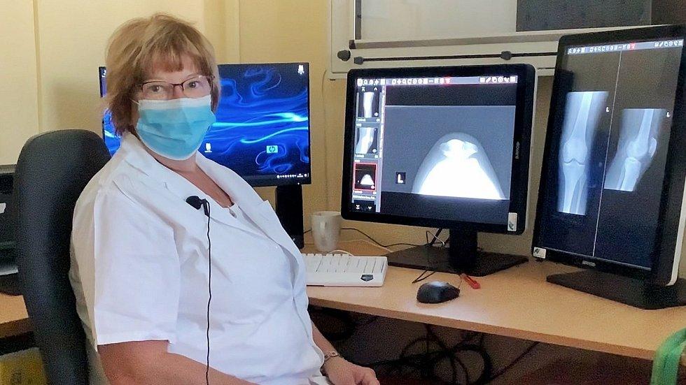 Primářka Jana Vašíčková pracuje s rentgenovými snímky.
