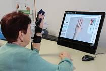 Pacientům v prostějovské nemocnici pomáhá robotická ruka