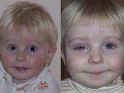 Na jedné z posledních fotek (snímek vlevo) je Veronika Opelková naprosto zdravým dítětem. Na snímku vpravo je Veronika týden po nehodě, kdy mohla oko otevřít aspoň napůl.