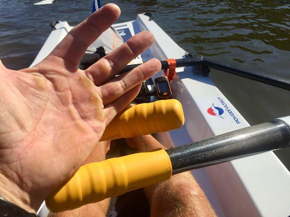 Takhle vypadají ruce veslaře.