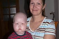 Tomášek s maminkou Michaelou. Hošík takto oteče po podání léků.