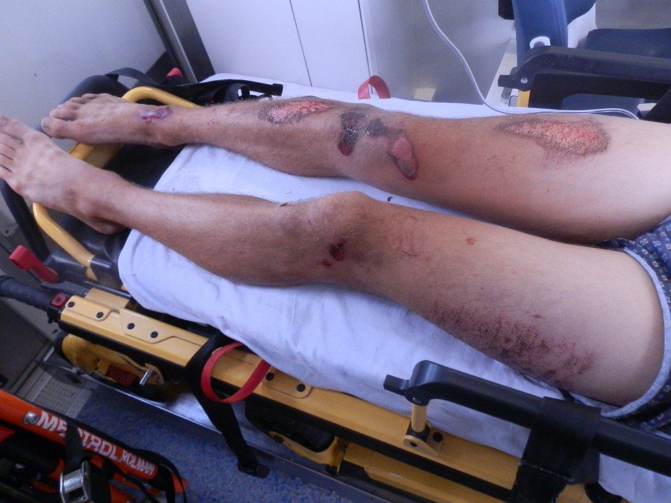 Nehoda dvou motorkářů u Světlíku.