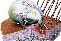 Klíšťata přenáší nebezpečné virové onemocnění.