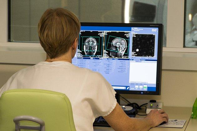 Přerovská nemocnice se zaměří na osvětu mozkové mrtvice