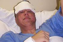 Petr Chmelař, jeden ze zraněných při výbuchu cisterny v přerovské chemičce.