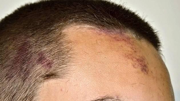 Mladý fotbalista Čechovic Jiří Zatloukal si odnesl ze šarvátky v Želatovicích odnesl otřes mozku
