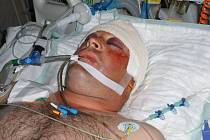 Po totožnosti neznámého muže, který se vážně zranil při nehodě na kole, nyní pátrají přerovští policisté. Nepoznáte ho?