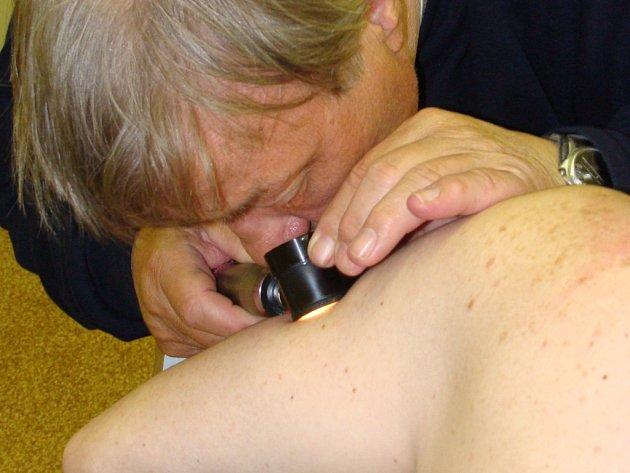 Bezplatné vyšetření mateřských znamének přilákalo v pondělí do ordinací kožních lékařů v Přerově desítky pacientů.