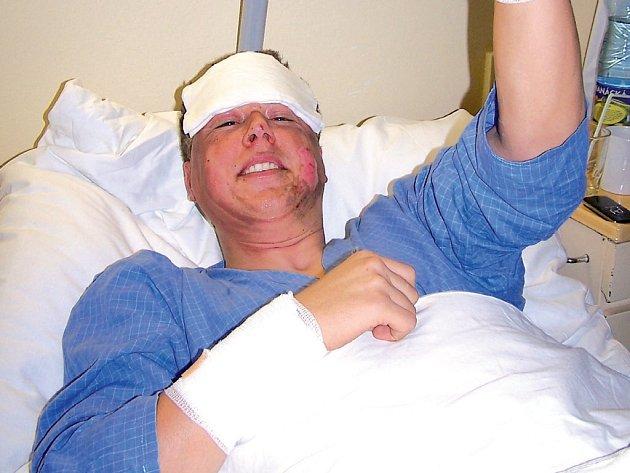 S popáleninami druhého stupně skončil v nemocnici pracovník přerovské chemičky po výbuchu vodíku.