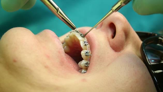 Nové pacienty na Přerovsku přibírá malokterý stomatolog. Vesměs jsou jejich kartotéky plné.