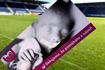 Fotbalisté Slovácka podpořil projekt spolku Nedoklubko, jenž se věnuje předčasně narozeným dětem a jejich rodinám.