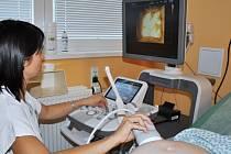 Nový ultrazvuk mohou od těchto dnů v Uherskohradišťské nemocnici využívat všechny nastávající matky.