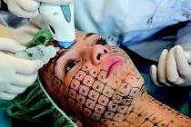 Omlazovací metoda Thermage za pomoci radiofrekvenční energie navrací kůži mladý vzhled po jediném ošetření, a to zcela bezoperačně a takřka bezbolestně.