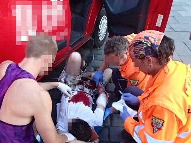 Silně otřesený zakrvácený mladík s otevřenou zlomeninou paže.