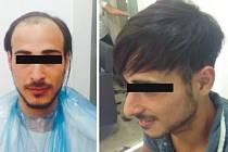 Vypadávání vlasů či lysiny neřešte transplantací,  stačí na to bezbolestná biokompatibilní metoda.