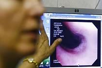 USNADNÍ LÉČBU. Videozáznam z vyšetření pacienta bude mí lékař kdykoli k dispozici. (Zobrazovací stanice)