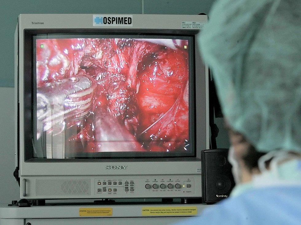 Odstranění prostaty s nádorem pomocí robotického systému da Vinci.