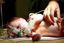 Den po příletu dvou matek s dvěma dětmi z Kosova do Prahy, bylo jedno z nich, třínedělní Kacina Edonis, 26. června v pražské nemocnici v Motole operováno. Dítě mělo problém se špatným průchodem krve do dolní části těla.