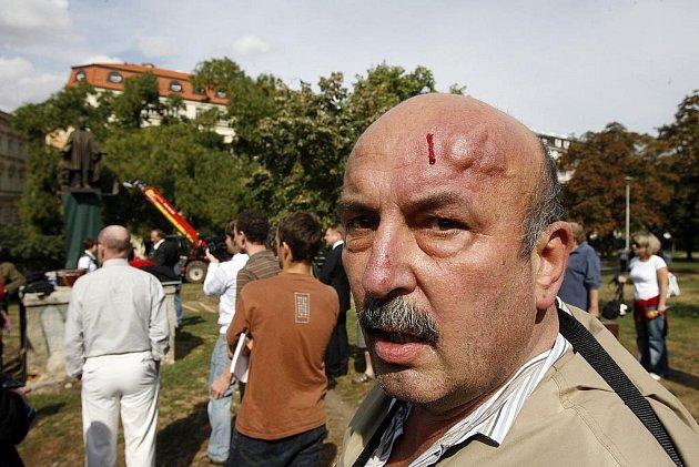KDE MLČÍ MŮZY. Sochař Hejtmánek poté, co ho napadl Michal Blažek a dvakrát udeřil pěstí.