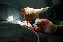Transplantace. Ilustrační foto.