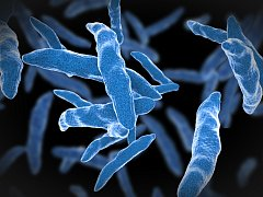 Bacil tuberkulózy. Ilustrační foto.