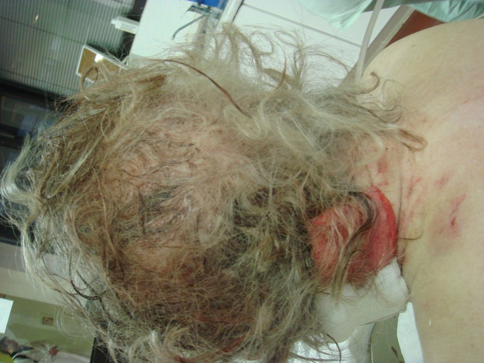 Policisté ukázali záběry zranění, která pachatel ženě způsobil