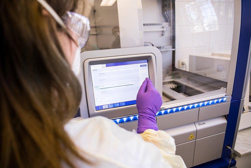 Laboratoř Fakultní nemocnice v Motole vyšetřila už několik tisíc vzorků na přítomnost koronaviru.