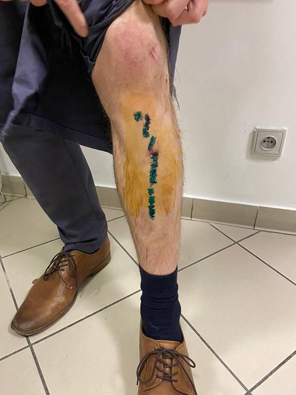 Zranění, která utrpěl napadený muž.