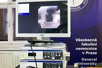 Kapka naděje darovala Všeobecné fakultní nemocnici v Praze bronchoskop pro dětskou pneumologii.