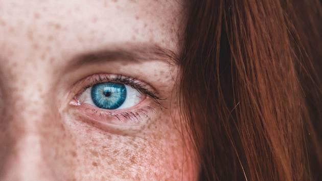 Hyperpigmentace je nepravidelné ztmavnutí pokožky, díky kterému získá pleť nerovnoměrný tón.