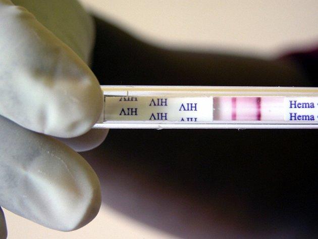 HIV tester. Ilustrační foto.
